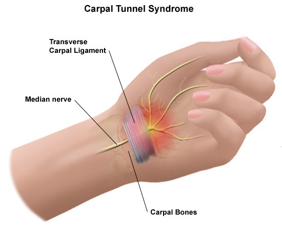 carpal tunnel syndrome explanation, Human Body
