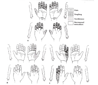 The hand symptom diagram test is one of the best test for ...