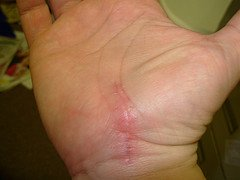 Open carpal tunnel surgery scar